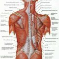 Herniated intervertebral disks โรค และ อาการของ รากประสาทขาถูกกดทับ