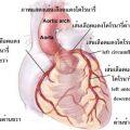 อาการเจ็บหน้าอก หลอดเลือดหัวใจตีบ โรคหัวใจขาดเลือด